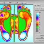 Estudio informatico del pie en Villaviciosa Asturias