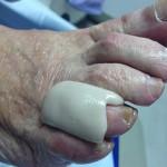 Ortopodología en Clinica del Pie en Asturias