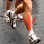 Periostitis Tibial, un gran enemigo para los Atletas !